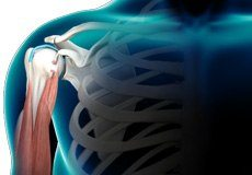 Biceps Tendon Rupture at the Shoulder