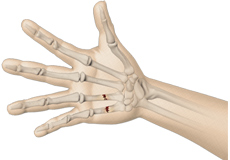 Fractures of the Hand and Fingers