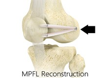 Medial Collateral Ligament (MCL) Reconstruction