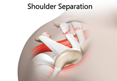 Shoulder Separation